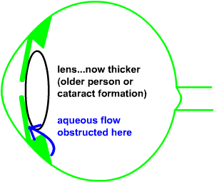 later anterior chamber narrows and aqueous obstructed