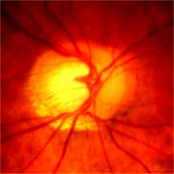 a cupped disc in chronic glaucoma 0.8c/d