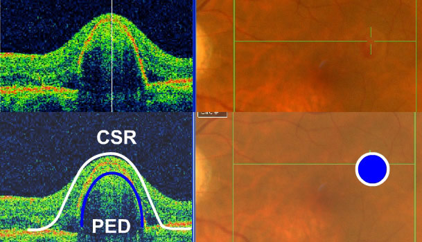 central serous retinopathy with a pigment epithelial detachment