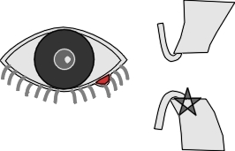 diagram of stye