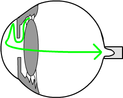 if the trabecular meshwork blocks, fluid cannot drain out of the eye, the pressure goes up, and the pressure is transmitted to the optic nerve