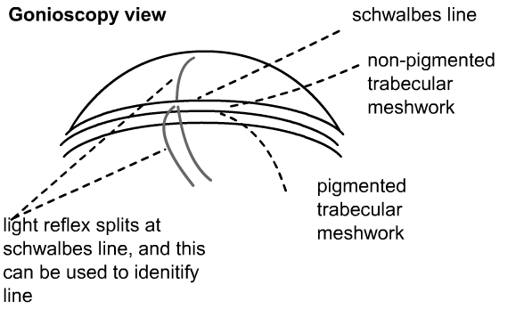 gonioscopy view of angle