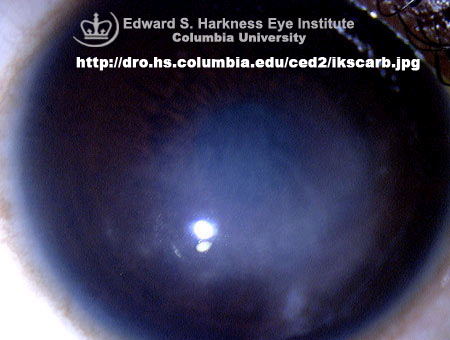 a corneal scar..similar to an old herpes simplex scar