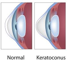 http://www.kcnz.co.nz/what-is-keratoconus.html