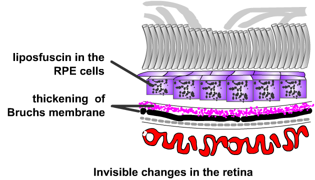 thickening of bruchs membrane with age in macular degeneration, diagram
