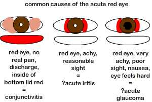 common causes of the acute red  eye