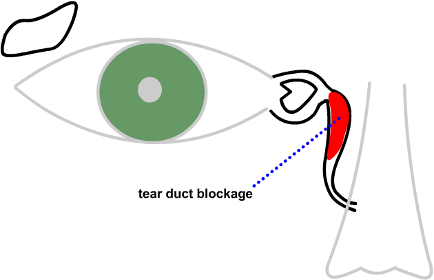 a blocked tear duct...between the eye and the nose